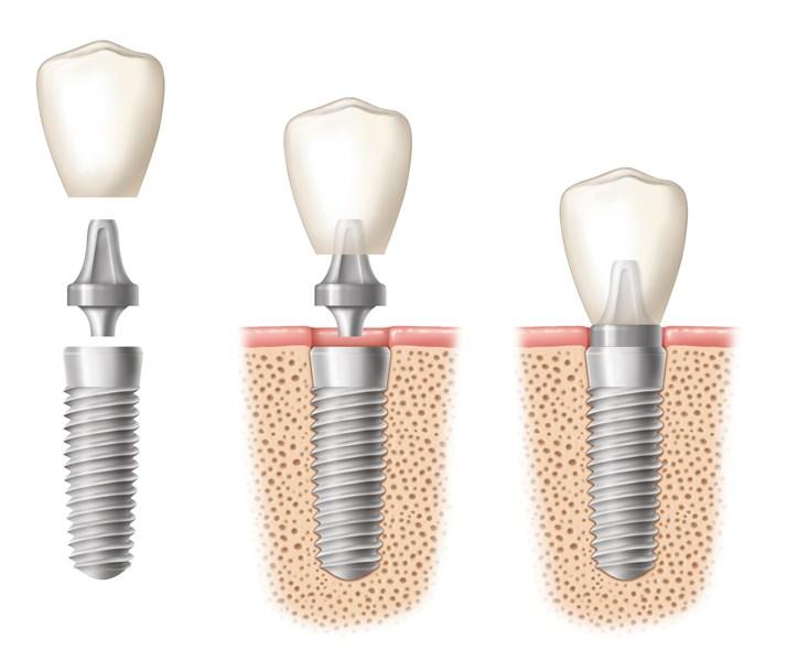 Cleveland Dentist, Cleveland Orthodontics, Cleveland Orthodontist, Dental Implants, Dentist, dentist cleveland, Dentist in Cleveland, Dentist in Strongsville, Dentist Near me, dentist strongsville, Need Braces?, Oral Surgeon, Orthodontics Cleveland, Orthodontist Cleveland, Orthodontist near me, Orthodontist Strongsville, Strongsville Dentist, Strongsville Orthodontics, Strongsville Orthodontist