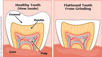 Braces, Cleveland Dentist, Cleveland Orthodontics, Cleveland Orthodontist, Dental Implants, Dentist, dentist cleveland, Dentist in Cleveland, Dentist in Strongsville, Dentist Near me, dentist strongsville, Need Braces?, Orthodontics Cleveland, Orthodontist Cleveland, Orthodontist near me, Orthodontist Strongsville, Strongsville Dentist, Strongsville Orthodontics, Strongsville Orthodontist, teeth grinding, jaw clenching