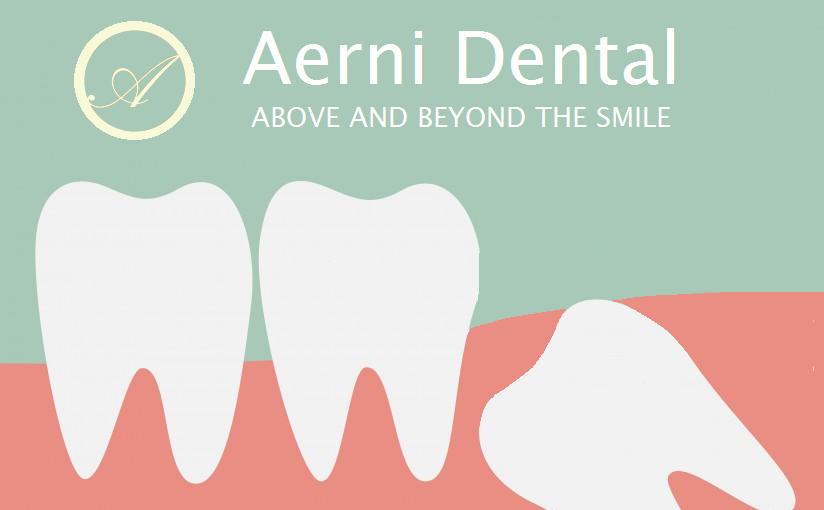 Wisdom Teeth, Impacted Wisdom Teeth, Dentist in Strongsville, Strongsville Dentist, Dentist in Cleveland, Cleveland Dentist, dentist strongsville, dentist cleveland, Symptoms of Impacted wisdom teeth