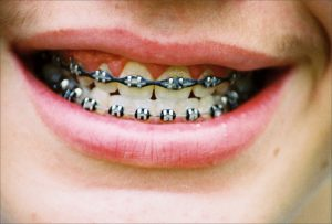 Orthodontic Care Stronsgville