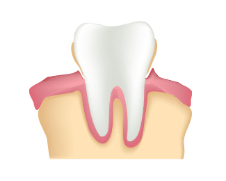 Gingivitis vs. Gum Disease Dentist Strongsville OH